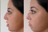 Челюстно-лицевая пластическая хирургия