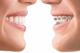 Ортодонтическая коррекция зубного ряда