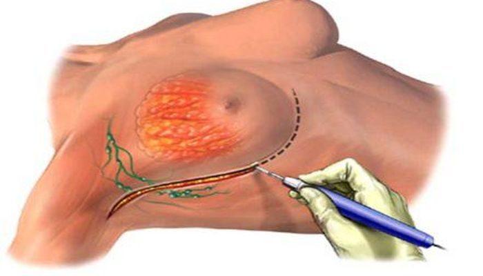 Частичное удаление молочной железы