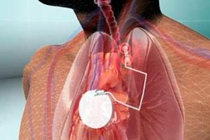 Электростимуляция блуждающего нерва