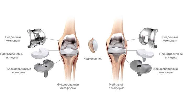 Замена сустава колена корея стоимость лечение сальмонеллеза суставов у голубей