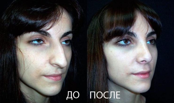 Изменение длины носа