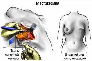 Мастэктомия - удаление молочной железы