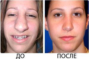Ринопластика ноздрей