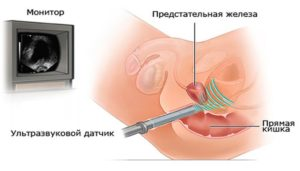 Удаление опухоли с помощью УЗ датчика
