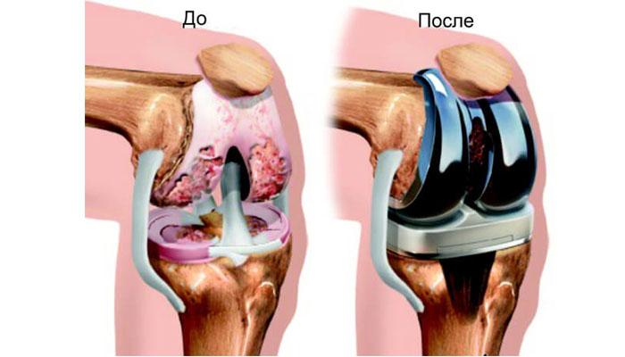 Протезирование коленного сустава в корее цена первая помощь при вывихе в плечевом суставе