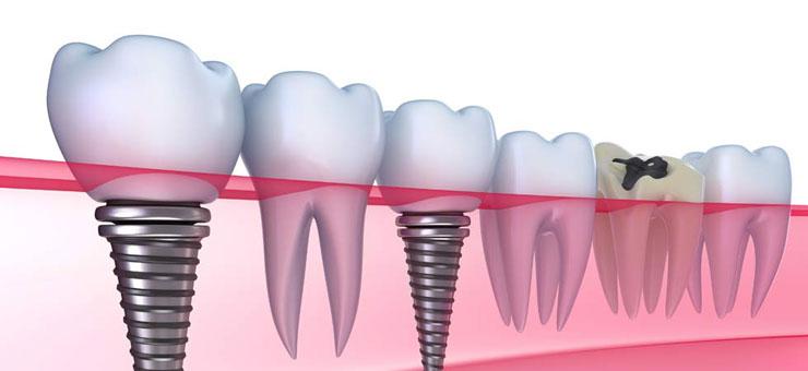 Экспресс протезирование зубов в Корее