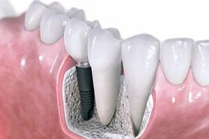 Имплантация зубов в Корее