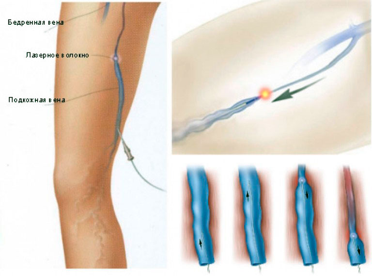 Операции на варикозное расширение вен на ногах виды последствия реабилитация