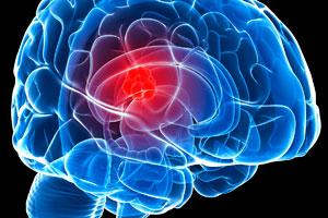 Лечение опухоли головного мозга в Корее