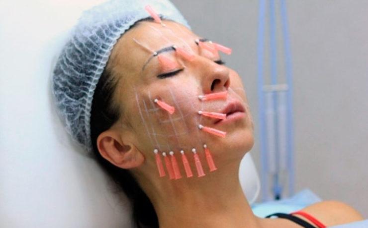 Подтяжка лица нитями обеспечивает низкий травматизм