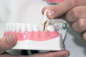 Протезирование зубов в Корее