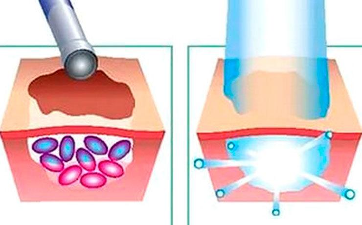 Фотодинамическая терапия. Вводимое вещество накапливается в опухоли, которая разрушается после облучения