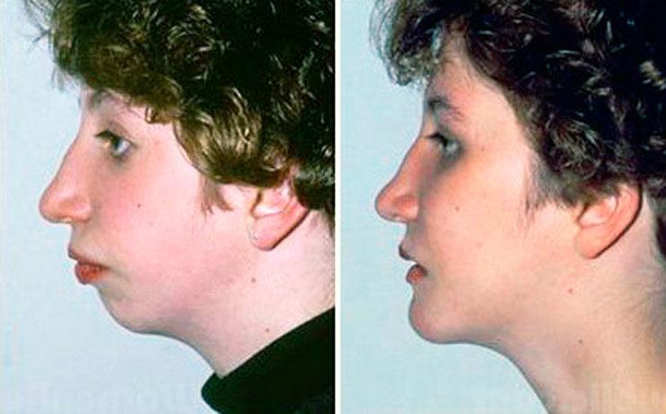 Увеличение маленького подбородка имплантацией