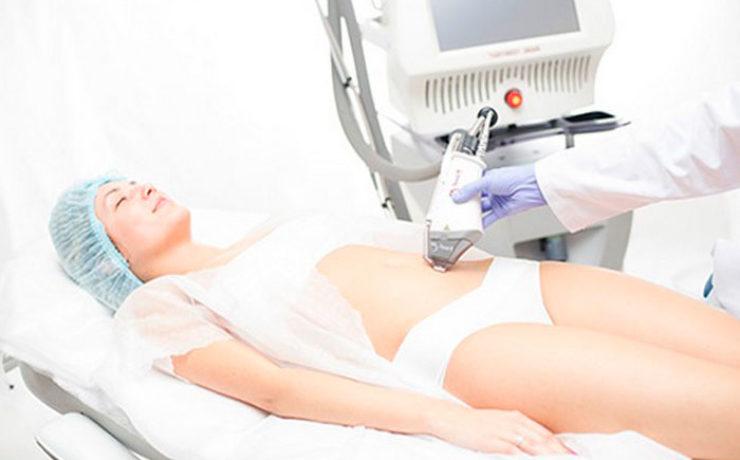 Лазерная — с помощью лазера без хирургического вмешательства