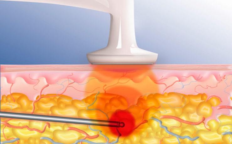 Радиочастотная — удаляет жир без хирургического вмешательства