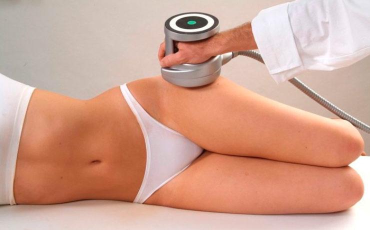 Ультразвуковая — жировая клетчатка разжижается и выводится