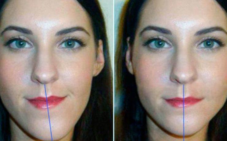 Контурная пластика челюсти