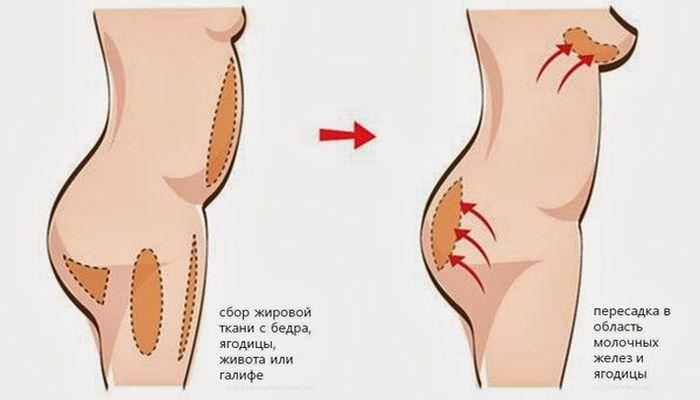 Липолифтинг груди