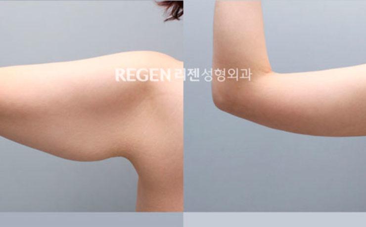 Хирургия тела. Фото 3